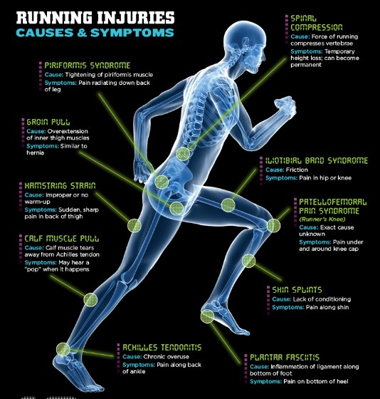 Image result for running injuries